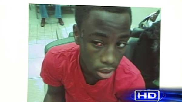 Chad-Holley-shortly-after-032310-beating, Video of vicious police beating of 15-year-old suppressed for nine months by Houston mayor, National News & Views