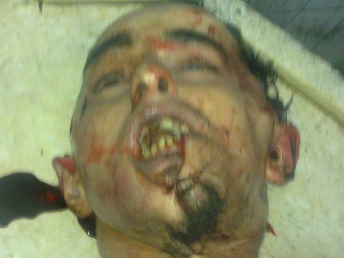 Khaled-Said-after-his-fatal-police-beating-0606104, Egypt revolution youth form national coalition, World News & Views