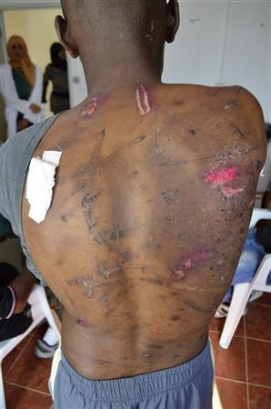 Taxi-driver-Ibrahim-Med-Khaled-24-shows-wounds-by-electrical-cable-beating-at-displaced-persons-camp-Benghazi-1015111, Cynthia McKinney: 12,000 U.S. troops bound for Libya, World News & Views