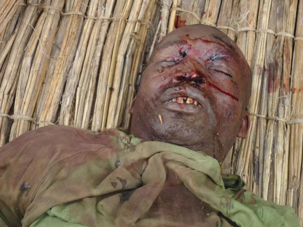 La-Visite-massacre-victim-right-eye-poked-out-072312-by-Claudy-Belizaire, Massacre at La Visite, World News & Views