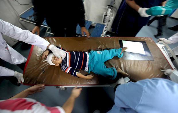 Gaza-City-wounded-toddler-in-al-Shifa-Hospital-111412-by-Majdi-Fathi-APA, Amid calls for more war crimes, Israel minister hopes attacks will 'reformat' Gaza, World News & Views