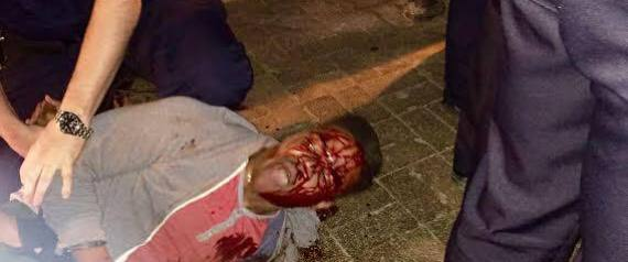 Martese-Johnson-beaten-031815-by-Twitter-Huffington-Post, Viciously beaten University of Virginia honor student Martese Johnson did not have a fake ID, attorney says, National News & Views