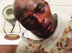 Kelevin-Stevenson-Georgia-prisoner-beaten-with-hammer-by-guards-123110-300x222, Georgia, land of peanuts, pecans and prisons, has always been a penal colony, Behind Enemy Lines