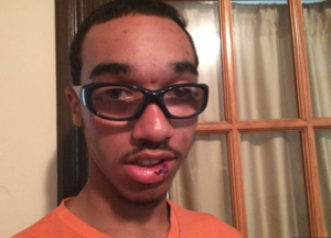 Marcus-Abrams-17-autistic-after-police-assault-0915-by-Adrienne-Broaddus-KARE-300x216, Sister shares story about police profiling and beating her autistic brother, National News & Views