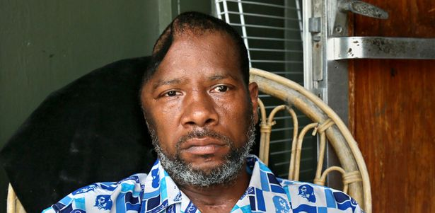 <b>Tony Brown</b> head caved in from fall after police Taser shot Riviera Beach FL ... - Tony-Brown-head-caved-in-from-fall-after-police-Taser-shot-Riviera-Beach-FL-070813-by-Palm-Beach-Post