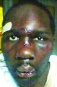 Miguel Jackson, like Kelevin Stevenson, was beaten with hammers by guards, and still has no justice.
