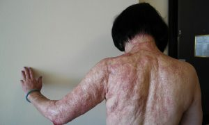 Kim-Phuc-52-laser-treatments-of-burns-for-pain-relief-Miami-2015-by-Nick-Ut-AP-300x180, What to Viet Nam is our 4th of July? Rethinking Burns & Novick's documentary, Part 1, World News & Views