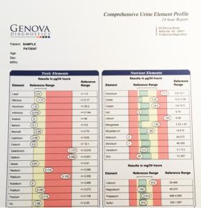 Genova-Diagnostics-Comprehensive-Urine-Element-Profile-cy-Ahimsa-289x300, Community exposure research in Bayview Hunters Point, Local News & Views