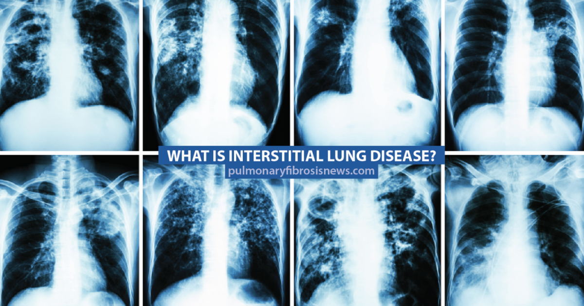 Interstitial-lung-disease-chest-xrays, Perfect storm: First wave of the COVID-19 pandemic crashes in Southeast San Francisco, Local News & Views