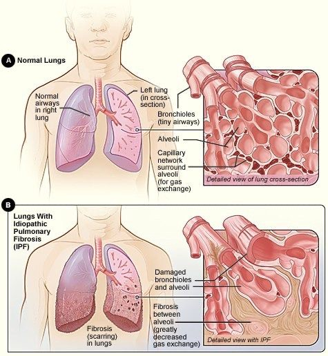 Normal-lungs-compared-to-lungs-with-idiopathic-pulmonary-fibrosis-graphic, From mother to martyr: Remembering Marie Harrison on the anniversary of her 'very last breath', Culture Currents