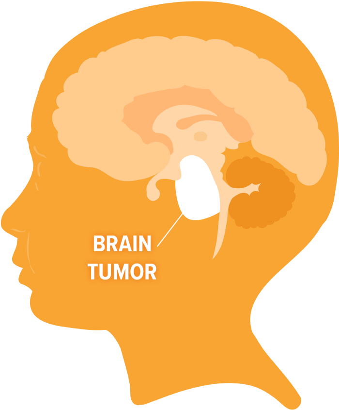 Brainstem-glioma-drawing, Brain cancer biomonitoring in Bayview Hunters Point, Local News & Views