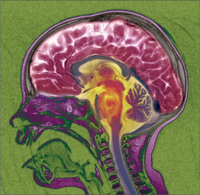 Brainstem-glioma-little-girl, Brain cancer biomonitoring in Bayview Hunters Point, Local News & Views