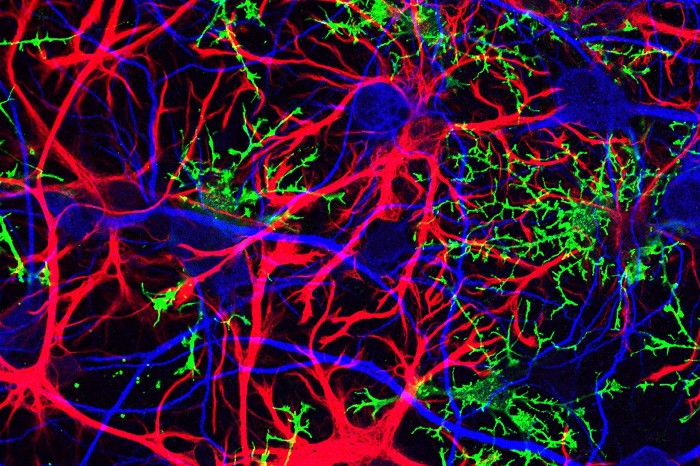 Glial-cells-and-neurons, Brain cancer biomonitoring in Bayview Hunters Point, Local News & Views