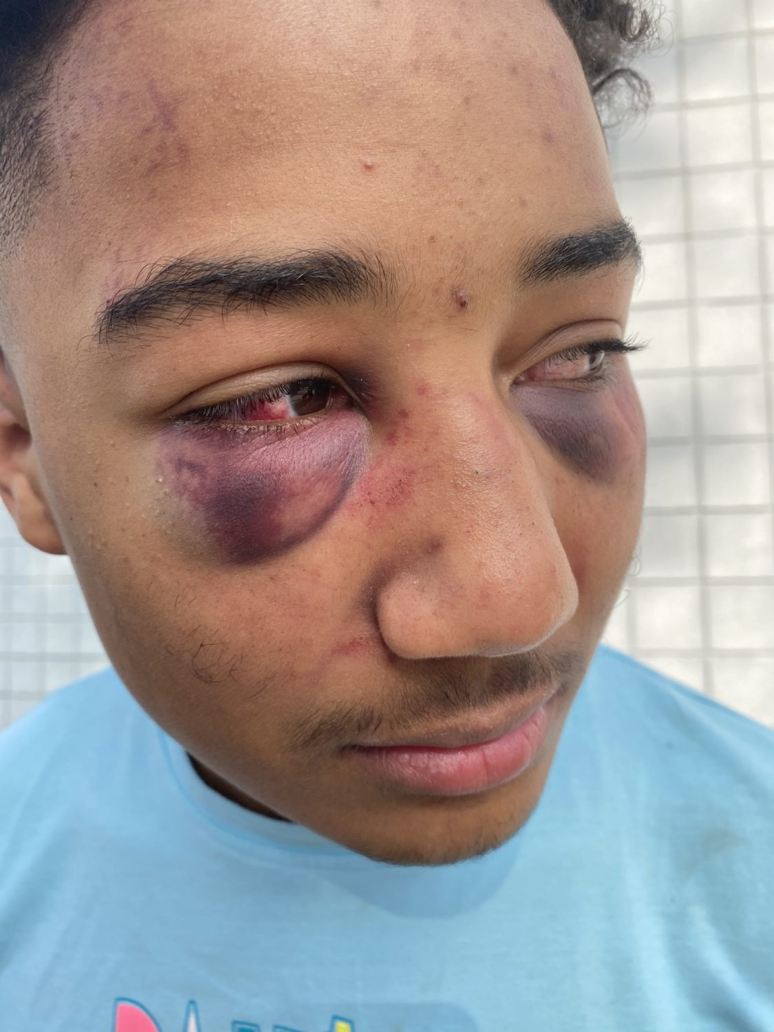 Devin-Carter-17-after-Stockton-cops-beating-123020, John Burris on the indictment of two Stockton cops for viciously beating Devin Carter, 17, Local News & Views